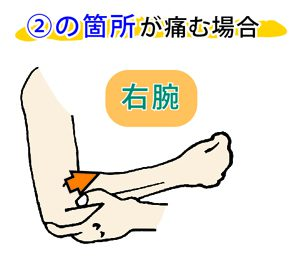 腰痛の治し方2